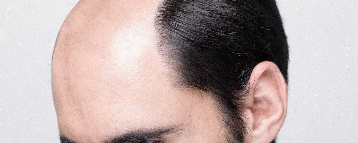manque-de-cheveux